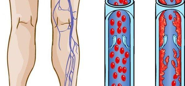 Варикоз язвы на ногах лечение