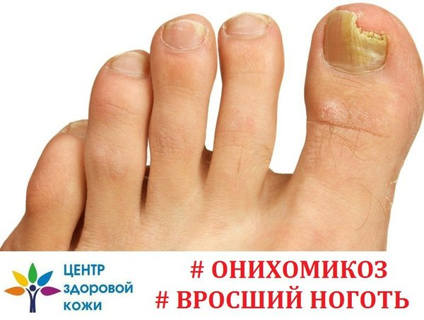 Онихомикоз (грибок ногтя) - ПроМедицина Уфа